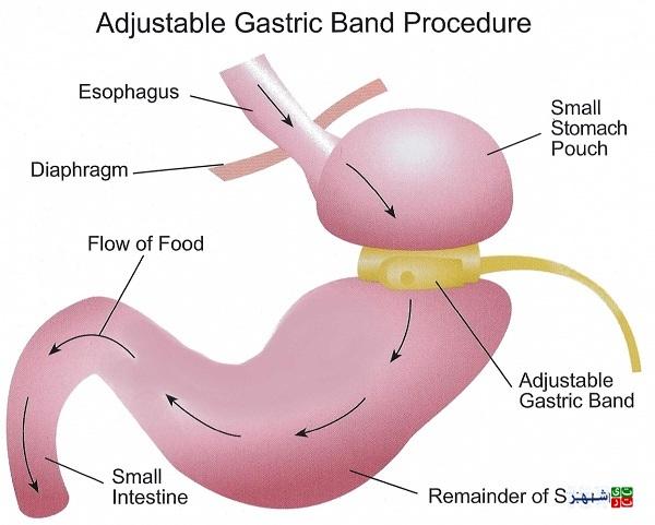 انواع جراحی معده برای لاغری