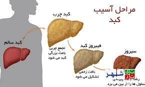 کبد چرب چیست؟علایم،پیشگیری و درمان کبد چرب